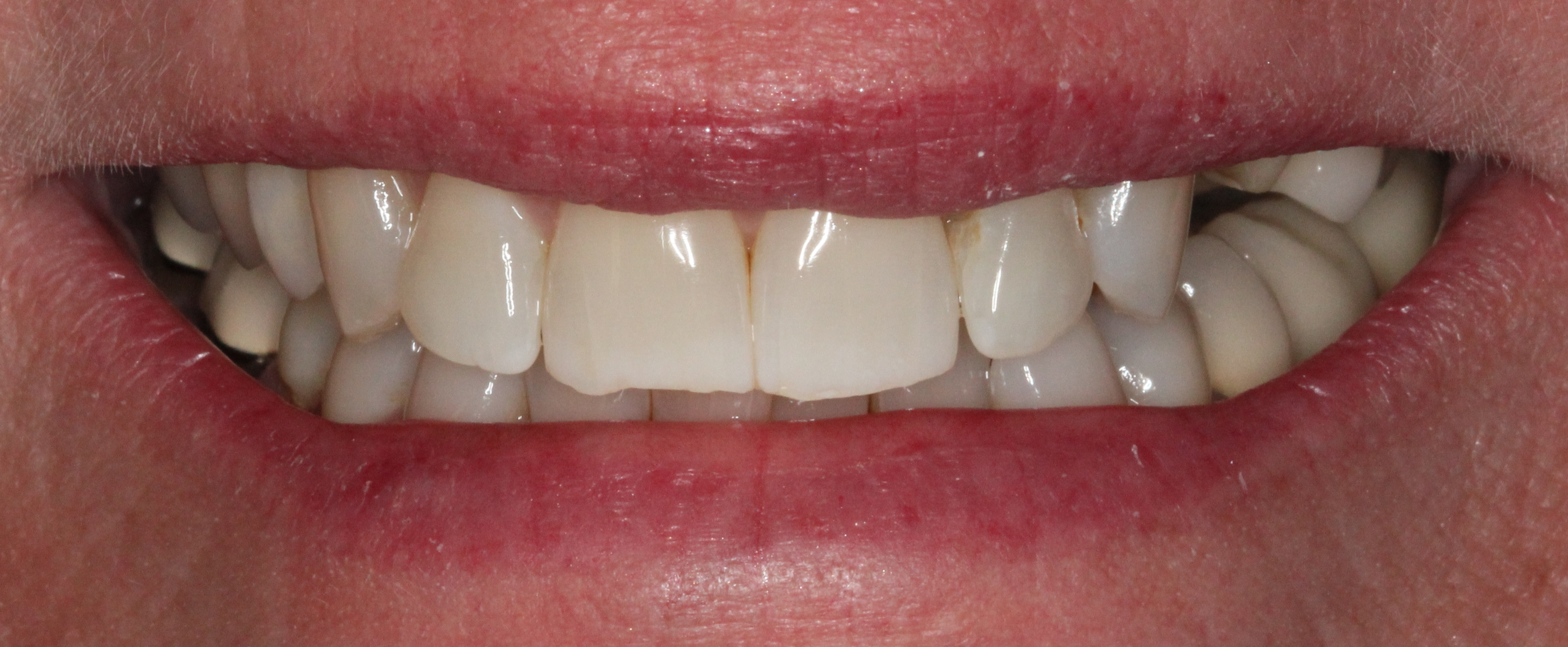 dental images 01907